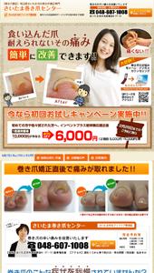 巻き爪矯正|埼玉県さいたま市のさいたま巻き爪センター|ランディングページ